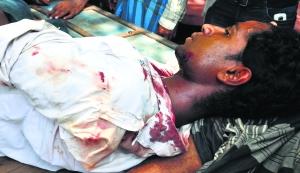 Injured CPI-M activist Feroz Mollah at Bhangor.